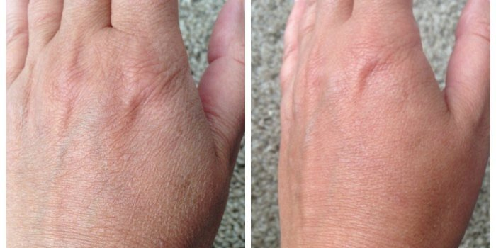Before and after Ureadin Ultra 10 Lotion Plus
