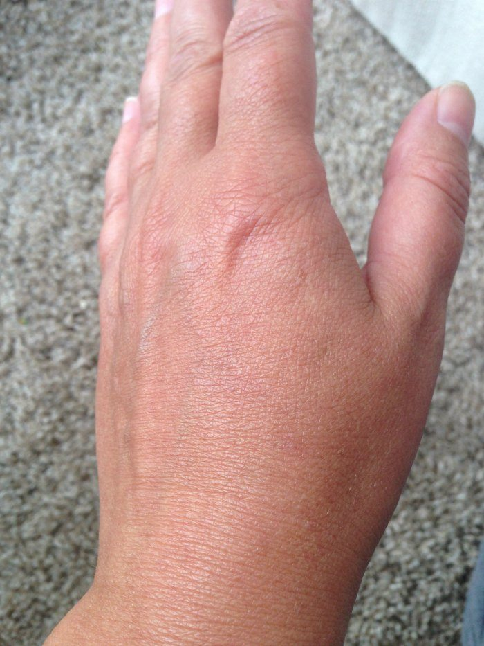 Hand closeup healthy skin after application of Ureadin Ultra10 Lotion Plus
